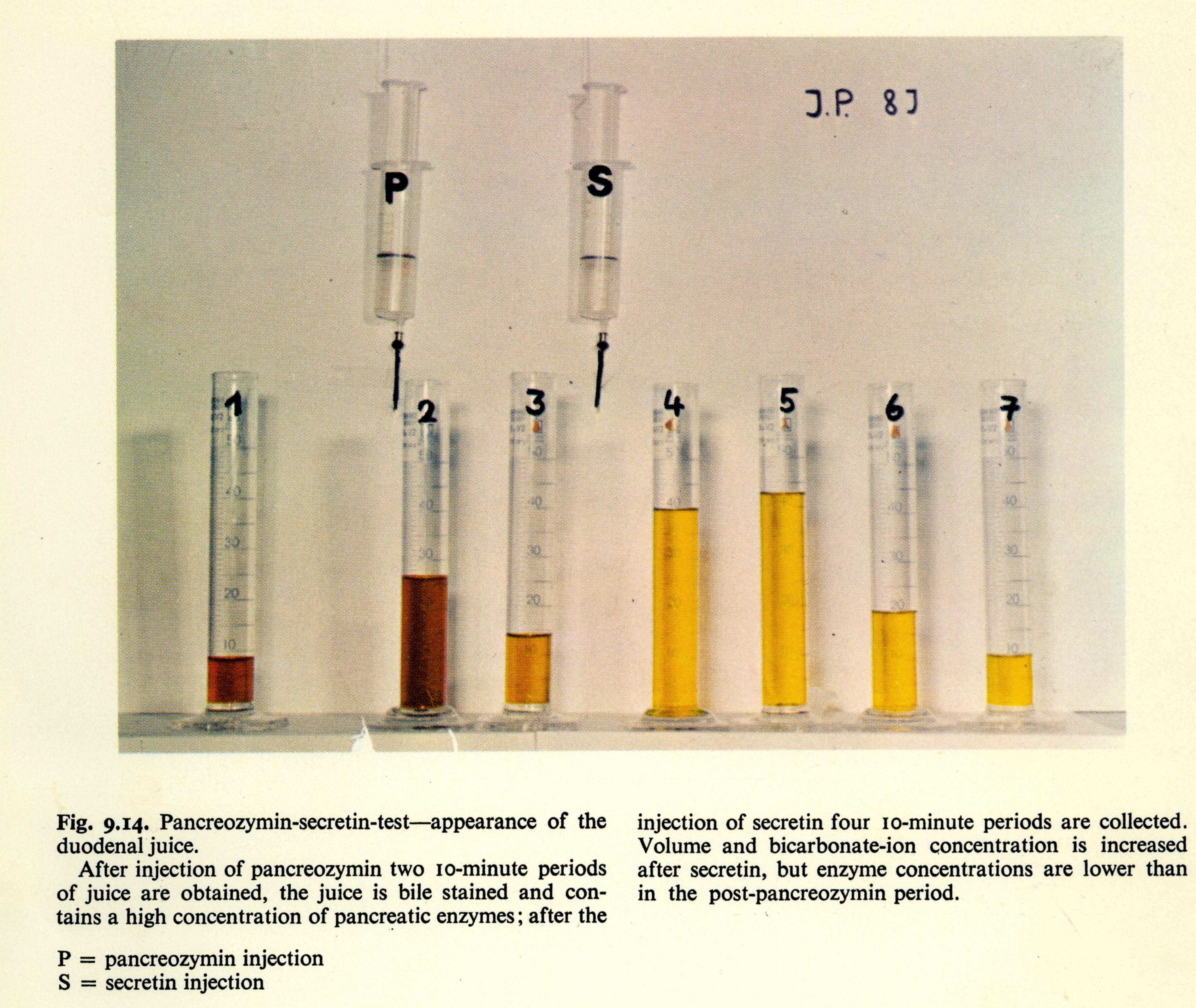 Pancreatic function test Anderson & Burke 1973